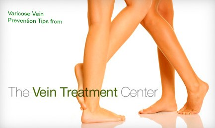 Varicose Vein Prevention Tips- How to avoid varicose veins from pregnancy