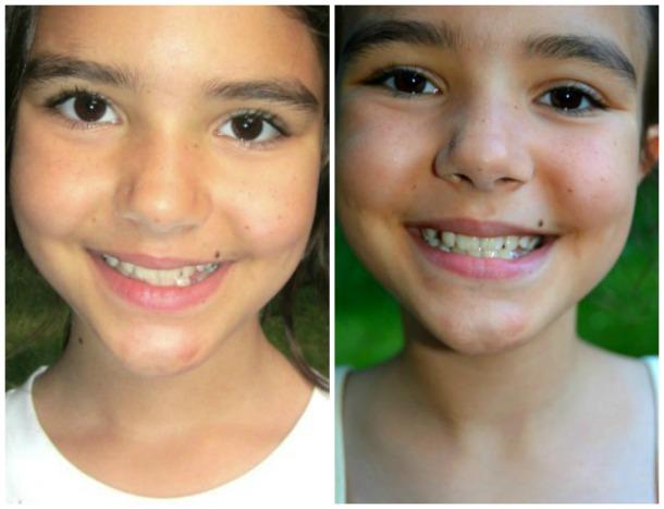 ash teeth whitening- Natural Teeth Whitener