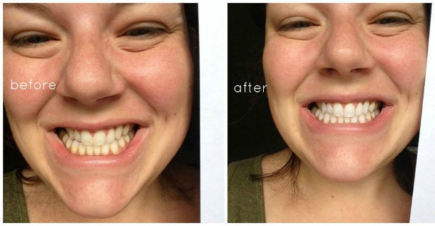 whiter teeth naturally